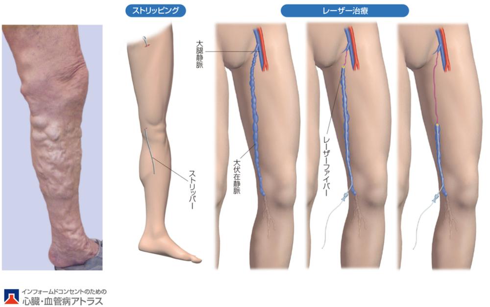 瘤 下肢 治療 静脈